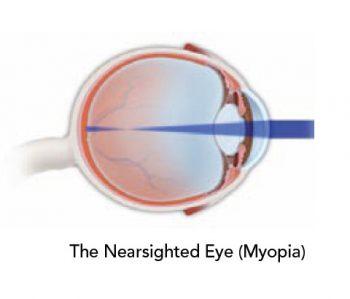 correction-myopia